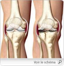 هشاشة العظام  في العمود الفقري