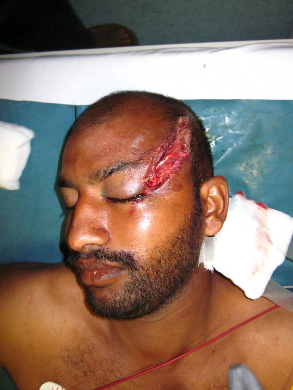Gross Injuries | www.imgkid.com - The Image Kid Has It!