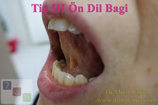 Dil bağı ameliyatı öncesi ve sonrası - Tip III dil bağı kesilmesi - Tip 3 dil bağı nedir? - Ön dil bağı - Dil bağı kesilmesi videosu - Dil bağı ameliyatı öncesi ve sonrası - Dil bağı tedavisi - Tongue tie release surgery - Tongue tie treatment in Istanbul - Dil bağı operasyonu - Tongue tie frenectomy