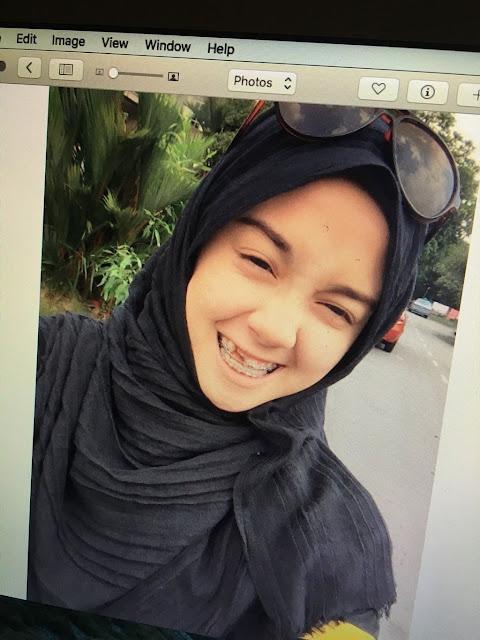 Dibully Karena Punya Gigi Ompong, Transformasi Wanita Asal Malaysia Ini Bikin Pangling