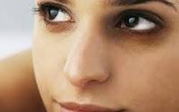 Göz Altı Morluklara Şişmelerine Ne İyi Gelir Göz Altı Morluklarına ve Şimelere Formül Nedir