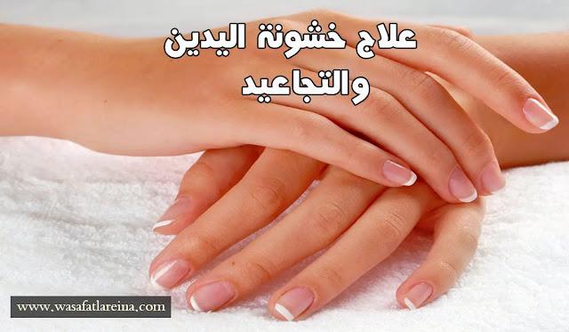 علاج خشونة اليدين والتجاعيد