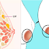 These 5 Super Foods Can Remove Breast Cyst and Stop its Growth Naturally