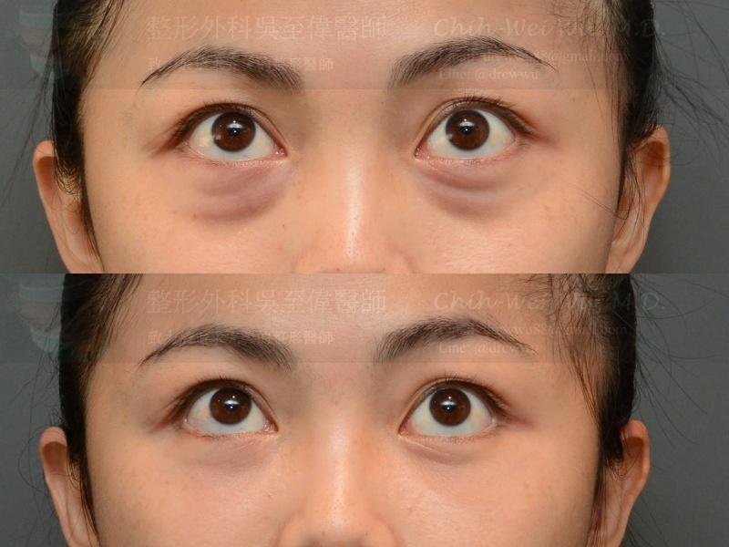 2020年10月最新眼袋手術案例,內開眼袋手術+奈米脂肪填補淚溝,眼袋手術推薦權威