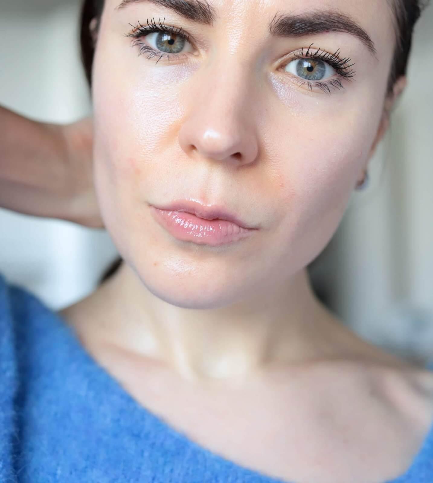 acné rosacée comment se maquiller