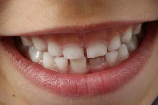 مراحل نمو الطفل (ظهور الأسنان وكيفية العناية بها)