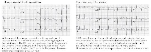 (A) ECG changes associated with hypokalemia. (B) Congenital long QT syndrome.
