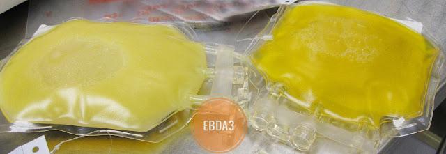 استخدام بلازما الدم في علاج مرضى الوباء الجديد