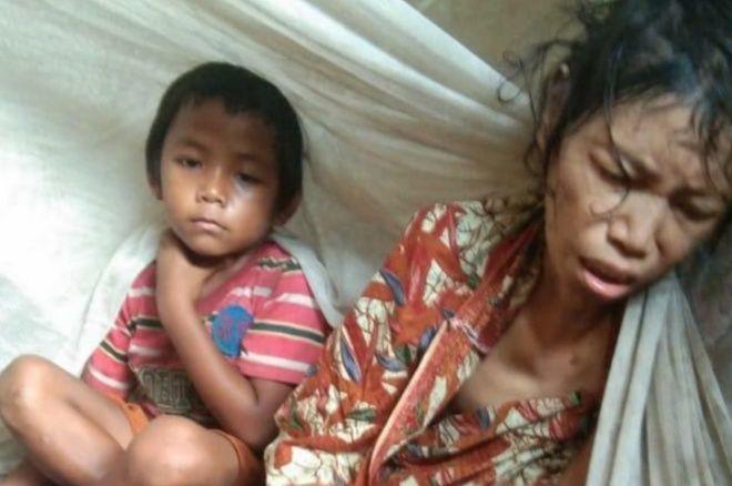 Salmiati Butuh Uluran Tangan, Sakit-sakitan Hanya Dirawat Anaknya Usia 7 Tahun di Pappolo