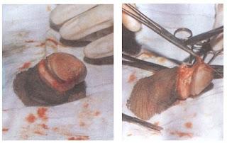 Frenulum clamp and cut - 4 1