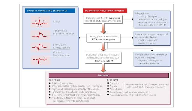 Acute Coronary Syndromes: ST Segment Elevation Myocardial Infarction