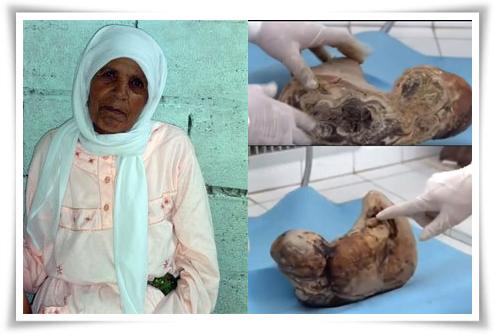 Mumia seorang bayi yang berada dalam perut seorang nenek 75 tahun