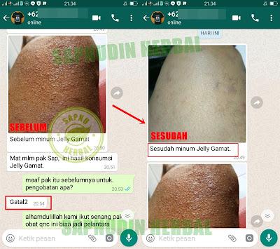 Obat Gatal Alergi Dingin Di Apotik / Apotek 100% Manjur