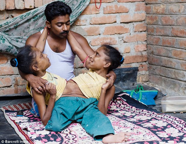 Conjoined Twins Find Love with the Same Man