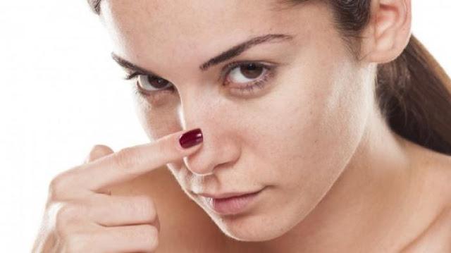 Memperbaiki Kulit Wajah Rusak Akibat Cream Abal-Abal dalam 3 Langkah