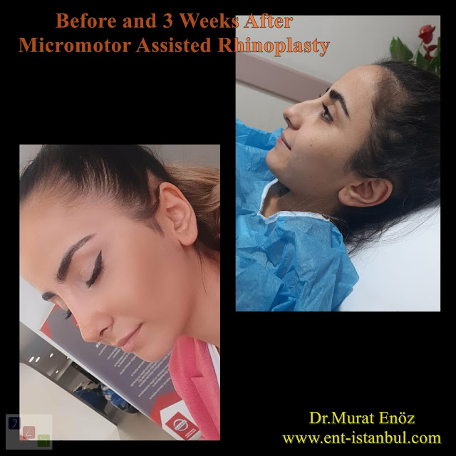 Before and 3 Weeks After Micromotor Assisted Rhinoplasty