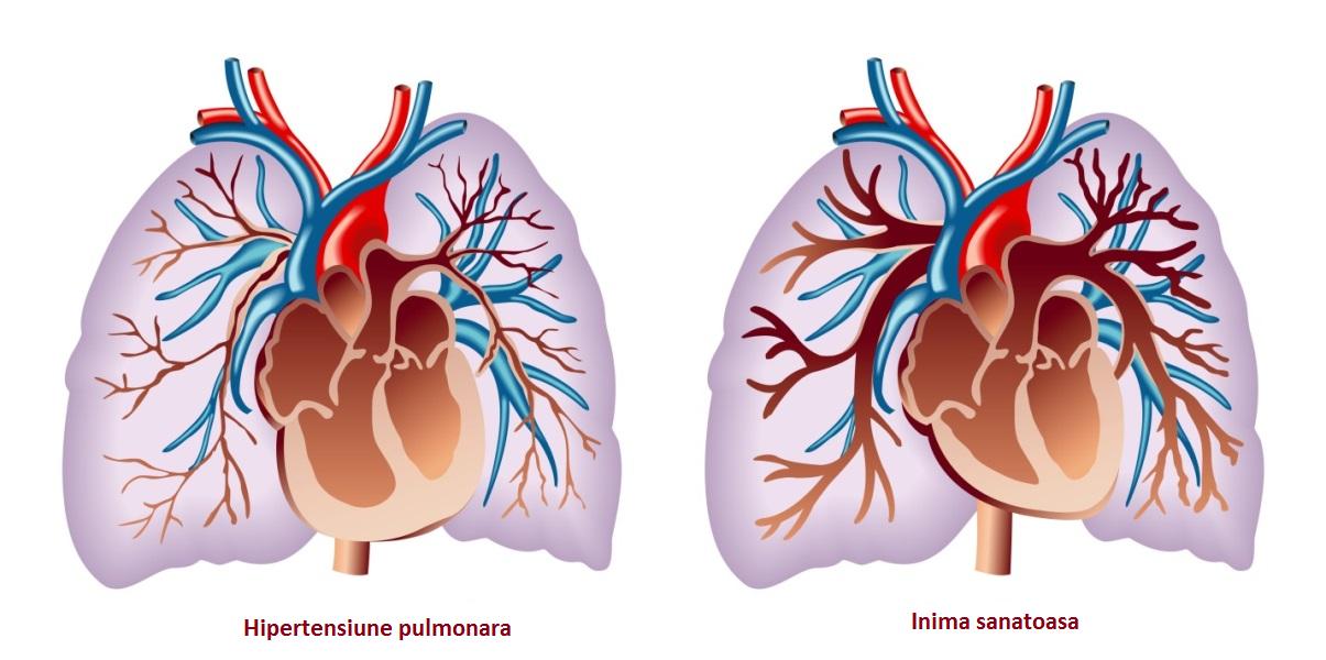 pierderea în greutate și hipertensiunea pulmonară