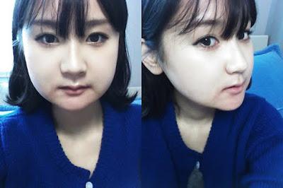 2 minggu sesudah reduksi rahang persegi & operasi dua rahang Wonjin