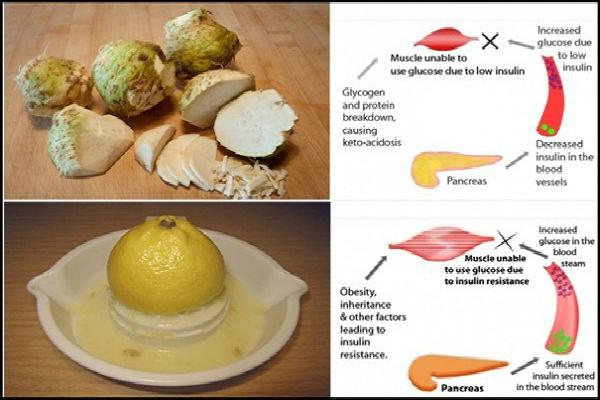 Cara Penyembuhan Penyakit Diabetes dengan Bahan Alami