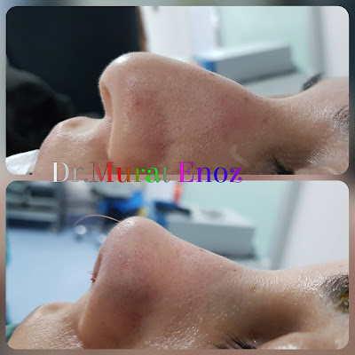 Nose tip drooping - Nose tip reshaping - Nose tip plasty - Nose tip reduction - Nasal tip plasty - Nasal tip rhinoplasty - Rhinoplasty in Istanbul - Rhinoplasty in Turkey