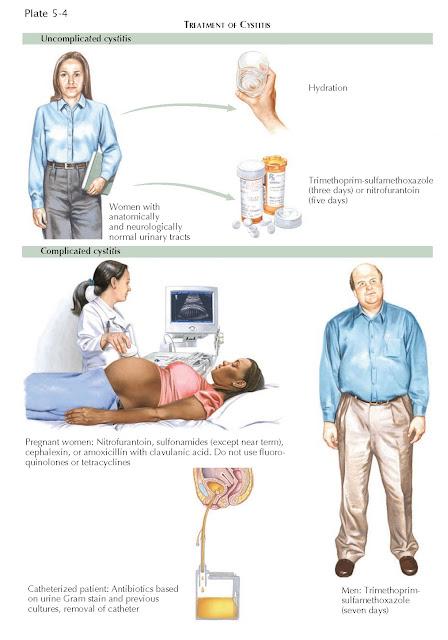TREATMENT OF CYSTITIS