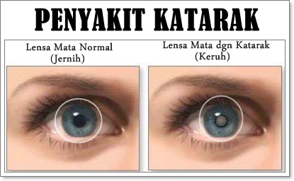 Pengobatan Penyakit Mata Katarak Tradisional