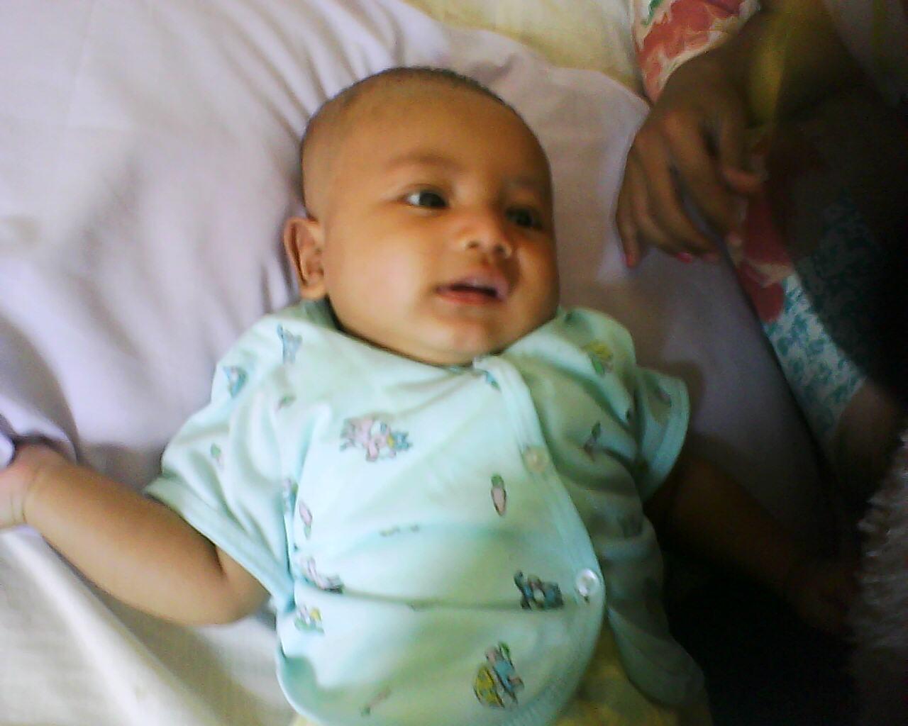 Gambar Bayi Asfiksia