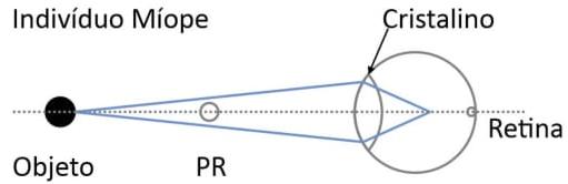 Ao focalizar objetos situados além do chamado ponto remoto (PR), a imagem forma-se à frente da retina, conforme ilustrado na figura.