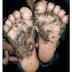 Menina de 10 anos de idade com tungíase nos pés
