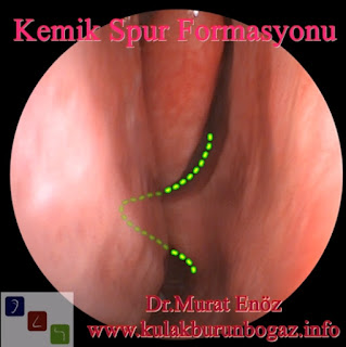 Bone Spur of Nose - Nasal Bone Spur - Bony Nasal Septal Spur - What Is a Nasal Bone Spur? - Nasal Bone Spurs Surgery İstanbul - Nasal Bone Spur Treatment in Turkey - Symptoms of Nasal Bone Spur - Nose Bone Spur Formation - Contact Point Headaches - Diagnosis of Nasal Bone Spur - Removal of a Septal Bone Spur - Atypical Headache