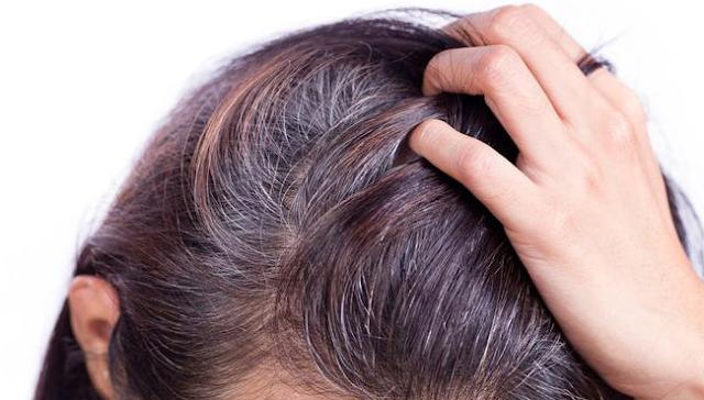 Cara Menghilangkan Uban Atau Rambut Putih