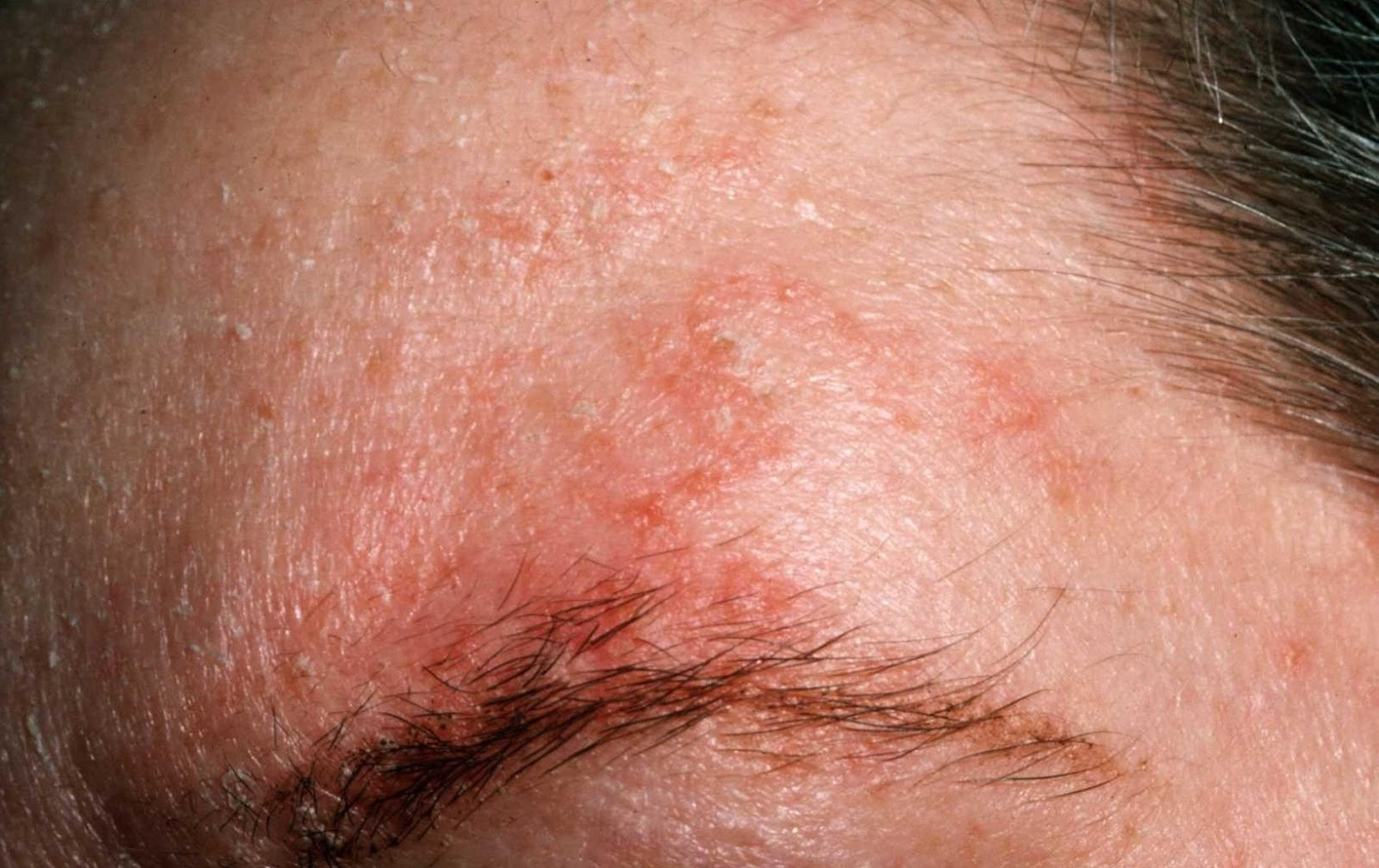 Photos Of Eczema On Adults Face  Treatment For Eczema -3790