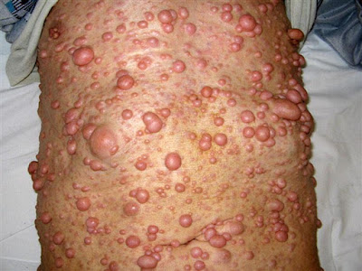 neurofibroma homeopathy treatment in chennai