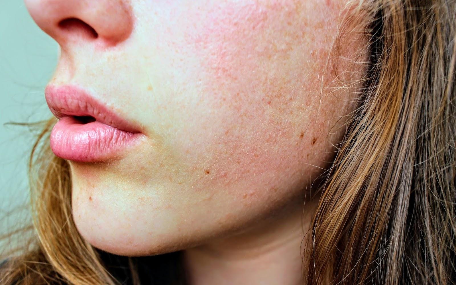 mengatasi kulit breakout di musim panas, skin, woman, skin breakout