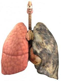 rawatan kanser paru-paru
