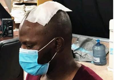 Police Brutalize AriseTV Cameraman Hours After SARS Disbandment