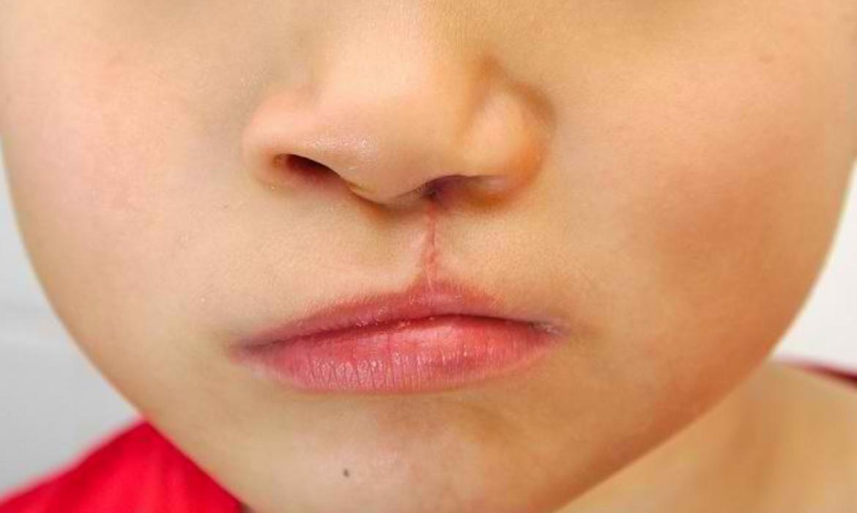 Pemkab Bone Gelar Operasi Bibir Sumbing Gratis, Catat Tanggalnya