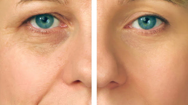 Señora con ojeras antes y después