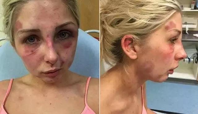 Τη χτυπούσε αλύπητα επί 4 ώρες επειδή δεν του έφερε τσιγάρα (ΠΡΟΣΟΧΗ - Σκληρές εικόνες)