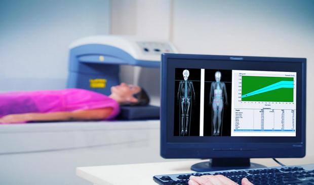 Densitometria óssea é aliada nas práticas de exercícios físicos