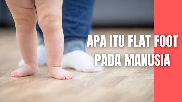 Apa Itu Flat Foot Pada Manusia Pada sebagian besar anak-anak memiliki lengkung longitudinal yang normal berkembang pada usia 2-5 tahun dan hanya 4% di antaranya yang tetap bertahan setelah berusia 10 tahun. Kaki datar yang sering kita jumpai kebanyakan akibat dari kelemahan ligamen kaki pada kelainan struktur tulang, ketidak seimbangan otot, dan kelemahan ligamen. Salah satu gangguan yang paling sering ditemui oleh pediatris yaitu flat foot, yang ditemui sekitar 28%–35%, akan mengalami penebalan pada bagian jaringan lunak dan akan menurun seiring dengan pertumbuhannya (Pudjiastuti, et all 2012)  Gangguan bentuk pada telapak kaki (kaki ceper atau flat foot) merupakan salah satu bentuk pada kaki yang abnormal dimana dalam tahap pertumbuhannya tidak terbentuk atau menghilang lengkungan kaki sebelah dalam (arcus medialis) saat anak berdiri (Harjanto, 2009).  Flat foot dilihat secara medis dimana tidak terdapatnya lengkungan atau biasanya disebut kaki yang rata atau berbentuk datar menyentuh tanah sehingga seluruh permukaan telapak kaki hampir menempel bahkan sampai menempel pada bagian tanah atau permukaan yang rata. Klasifikasi flat foot yaitu oleh faktor kongenital serta faktor dapatan. Faktor Kongenital sendiri dibedakan oleh fleksibel flat foot dan rigid flat foot. Akibat yang akan ditimbulkan dalam jangka panjang pada bentuk kaki tersebut akan terjadi nyeri dibagian telapak kaki, kelelahan, pergelangan kaki dan lutut sehingga membatasi aktivitas jalan, serta trauma yang akut terjadi secara terulangulang menimbulkan deformitas pada kaki, dapat diidentifikasi dengan, melihat cara berjalan anak karena obesitas, tibia varum, genu valgum, kelemahan otot dan ligament dapat dijadikan faktor utama sehingga menambah parah kaki datar (Harris et all, 2004).    Nah itu dia bahasan dari apa itu flat foot pada manusia pada manusia, melalui bahasan di atas bisa diketahui mengenai apa itu flat foot pada manusia pada manusia. Mungkin hanya itu yang bisa disampaikan di dalam artikel