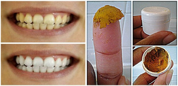 Be Your Own Dentist! Heal Cavities, Gum Disease, and Whiten Teeth with This Natural Homemade Toothpaste