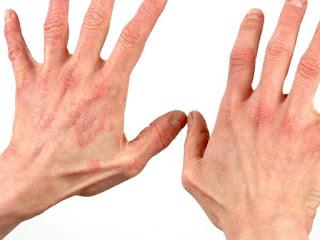 obat terbaik untuk menghilangkan gatal pada kulit akibat eksim