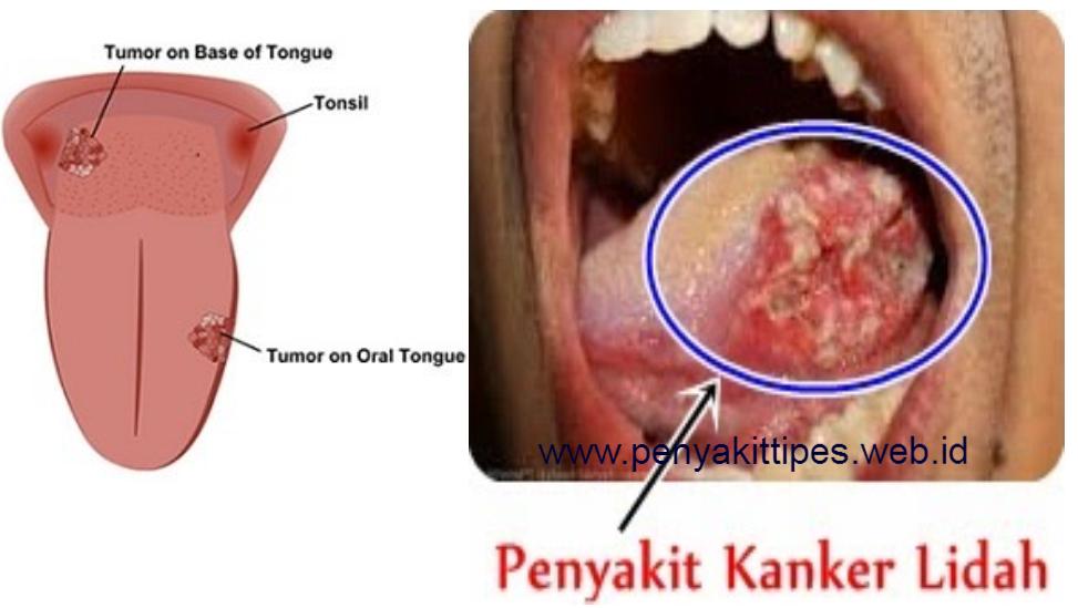 Obat Herbal Penyakit Kanker Lidah