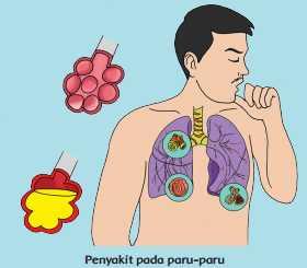 Penyakit pada paru-paru www.simplenews.me
