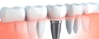la paz dentistry - dental implants versus dentures pros and cons image
