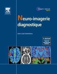 Neuro iMagerie Diagnostique 2ème édition PDF