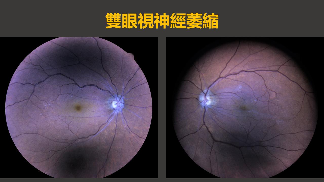 手術 視力 回復