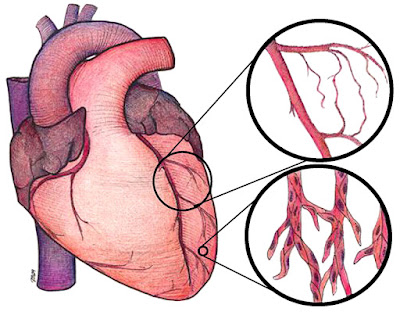 How to Prevent Heart-related Problems?
