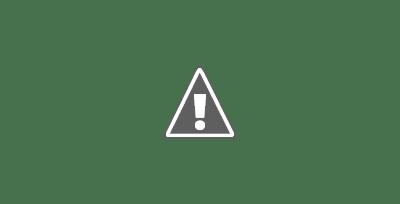 Fotografía de un ojo con midriasis